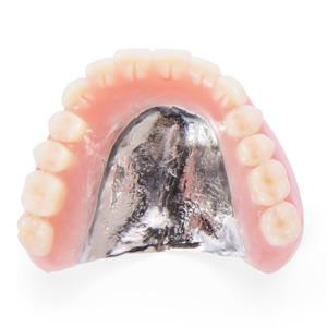 チタン庄義歯