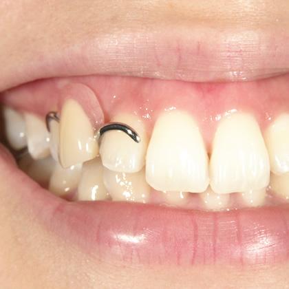 当院の精密部分入れ歯治療