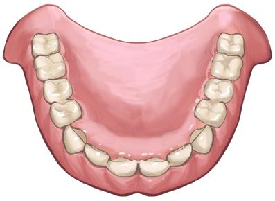 総入れ歯の問題点