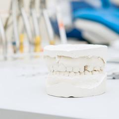仮義歯の作成と調整