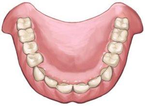 部分入れ歯の問題
